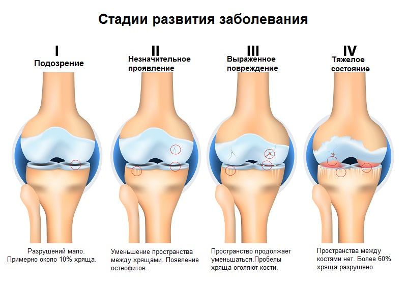 Kellgren lawrence артроз коленного сустава цацулин супер суставы