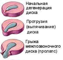 protruzya-diskv-prichini-viniknennya-ta-nasldki_522