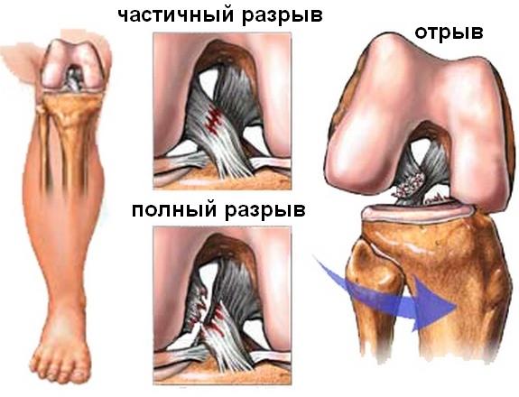povrezhdenie-krestoobraznyh-svjazok